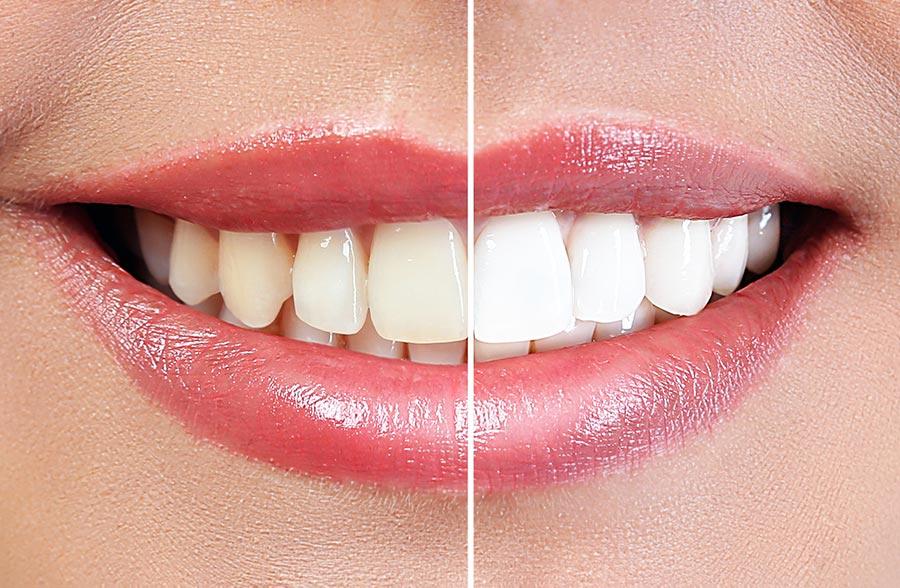Методы отбеливания зубов