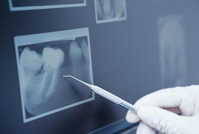 Качественная диагностика. 3-D снимок зубов.